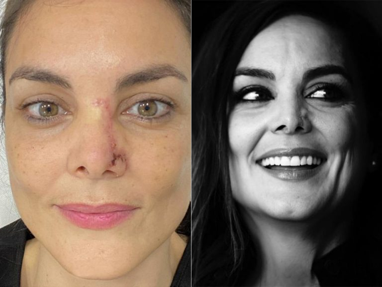 Mónica Carrillo muestra la cicatriz de su cáncer un año después y los famosos aplauden su valentía