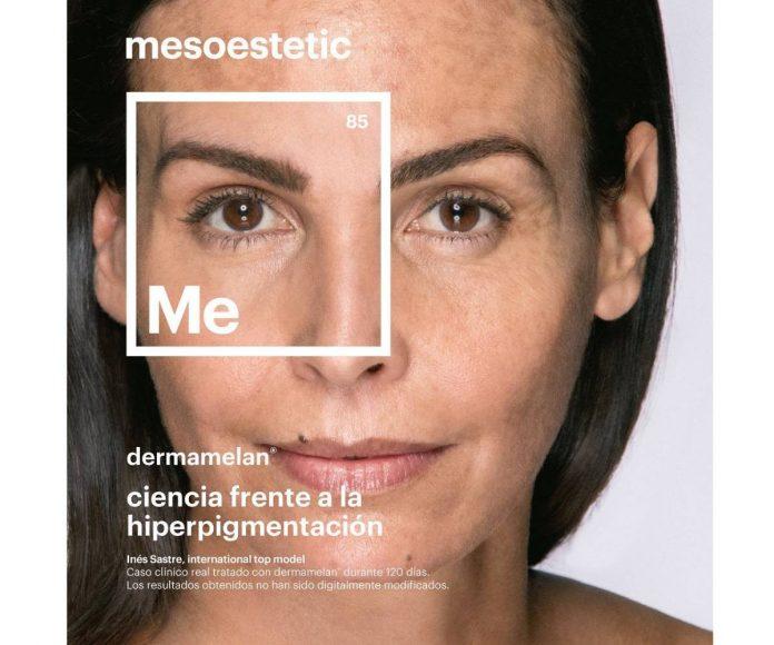 Inés Sastre tratamiento manchas
